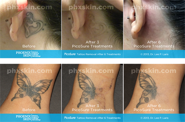 Types of tattoo lasers for Laser remove tattoo price